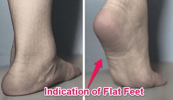 what flat feet look like in a tiptoe test