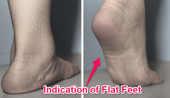 what flat feet look like in a tiptoe test