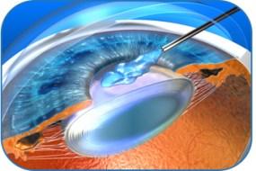 Déroulement de la chirurgie de la cataracte
