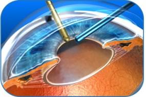 la chirurgie de la cataracte,