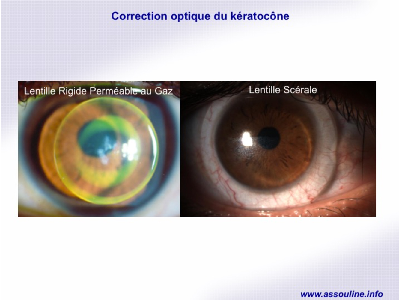 Correction optique du kératocône