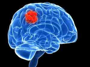 Opioid Use Disorder on the Brain