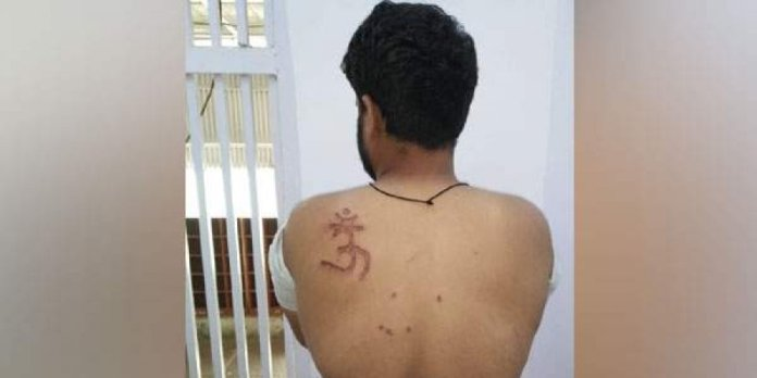 Tihar inmate Nabbir had got the brand on himself with the help of other inmates.