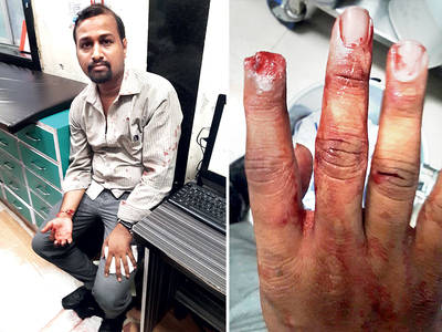 A co-passenger bites off another's finger over a heated argument for space in Mumbai local