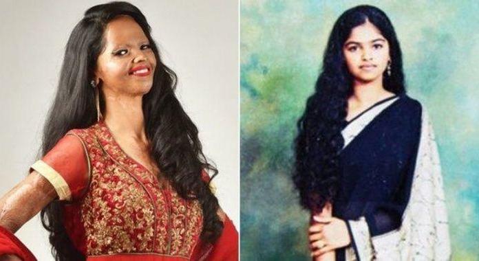 Image result for lakshmi agarwal