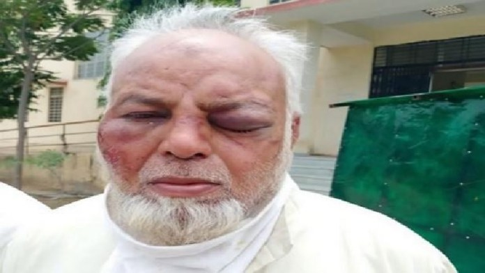 Muslim auto driver thrashed by history sheeters, communal angle unconfirmed
