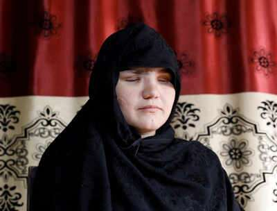 Victim of the Taliban's barbarity says the terror outfit fed dead corpses of women to dogs