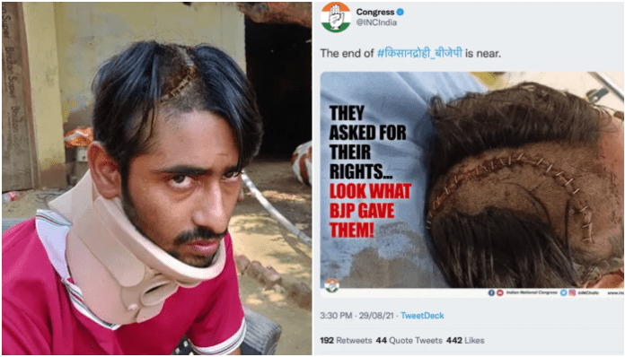 Congress misused the photo of a grievously injured Gau Rakshak and claimed he was a 'farmer protestor'