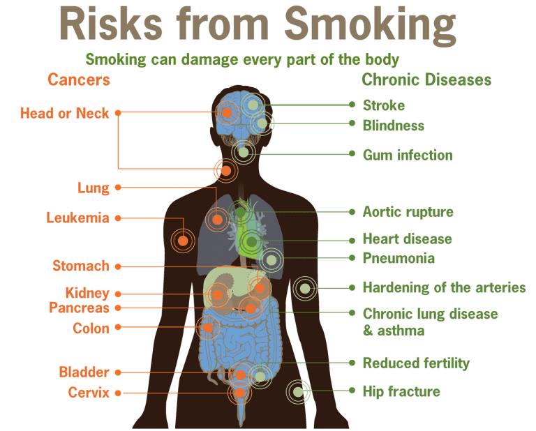 10 Manfaat Rokok bagi Kesehatan