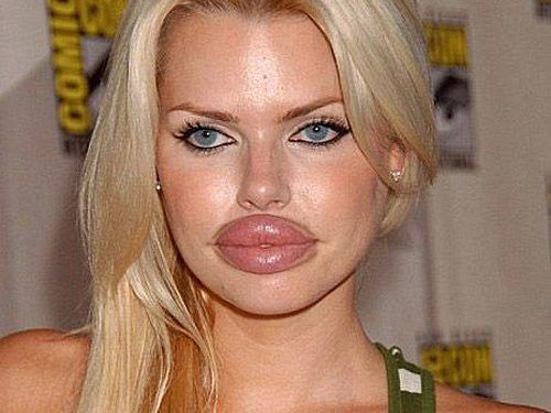 lips plastic surgery
