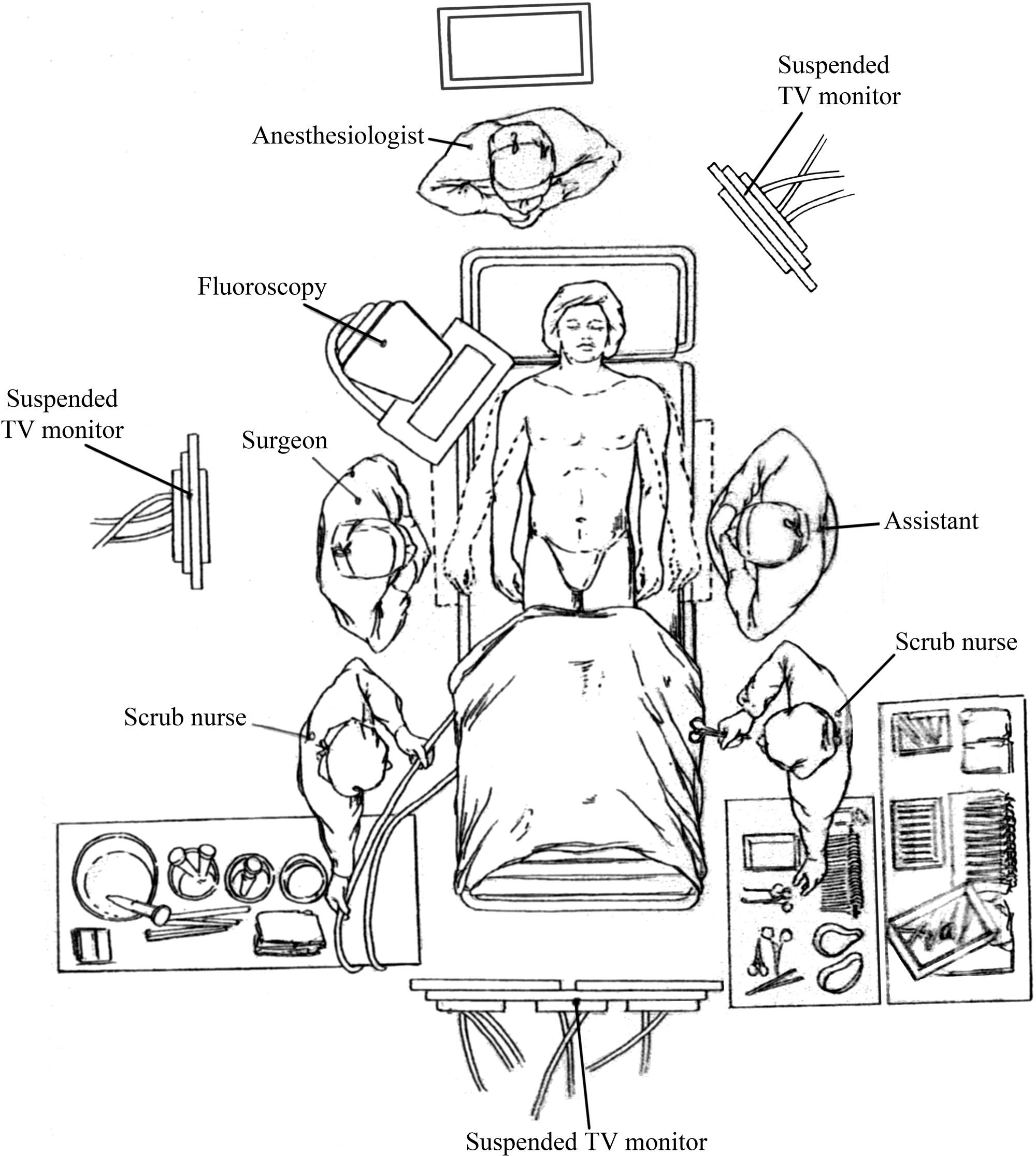 Thoracic Endovascular Aortic Repair