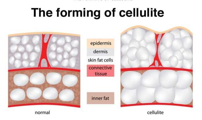 cellulitis verminderen