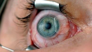 lasik göz cizdirme ameliyatı olmamak icin neden