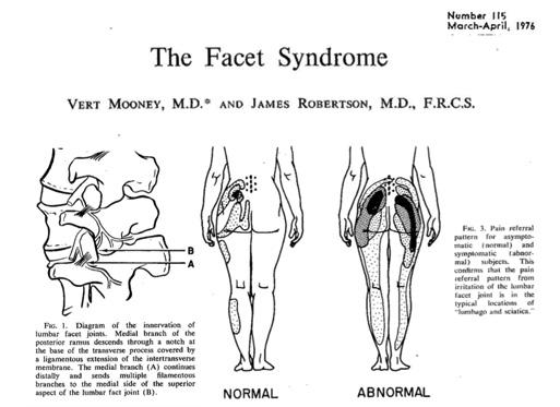 Artigo de 1976 demonstrando imagens da dor facetaria e área de irradiação da dor.