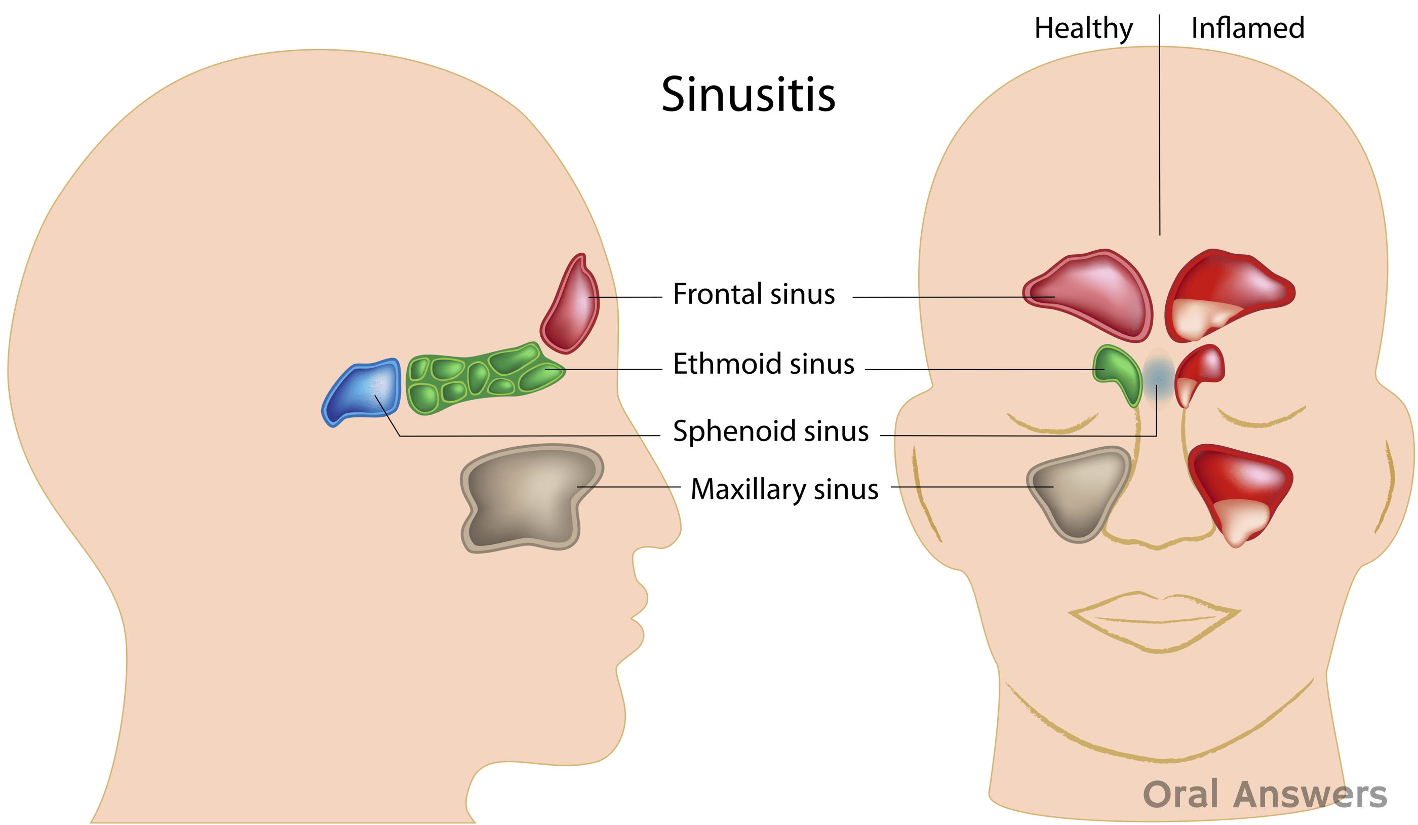 Textbook Ct Sinuses Scan