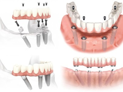Implantologia all on 4