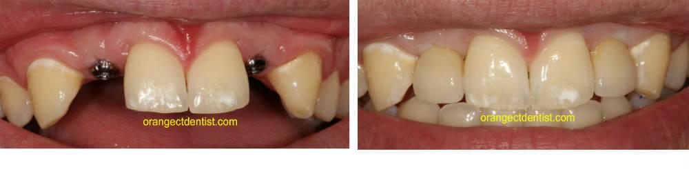 Partial Flipper Teeth Front