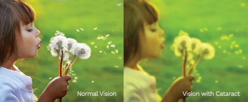 Vision kataraktis