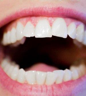 varför blir man torr i munnen