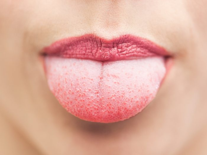 Image result wey dey for white tongue