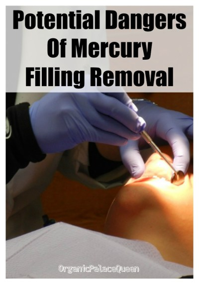 The dangers of removing silver fillings