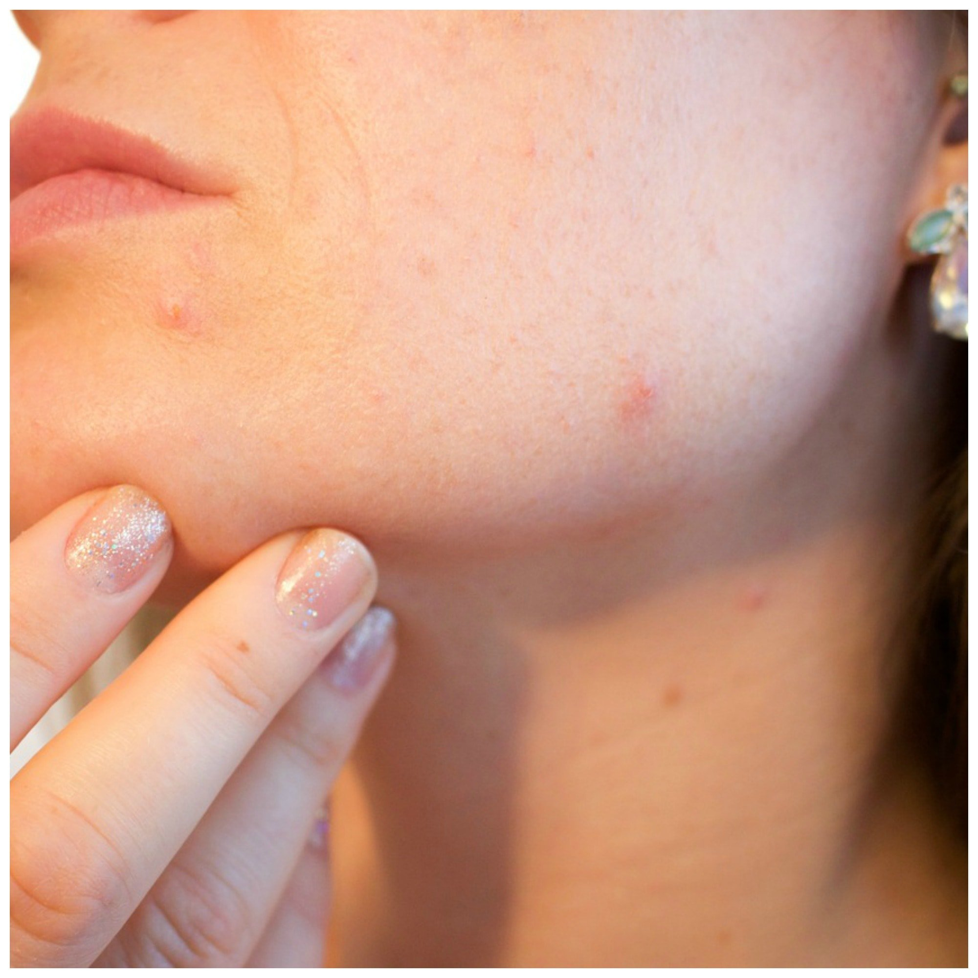 Can Essential Oils Help With Acne?
