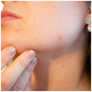 can essential oils help with acne
