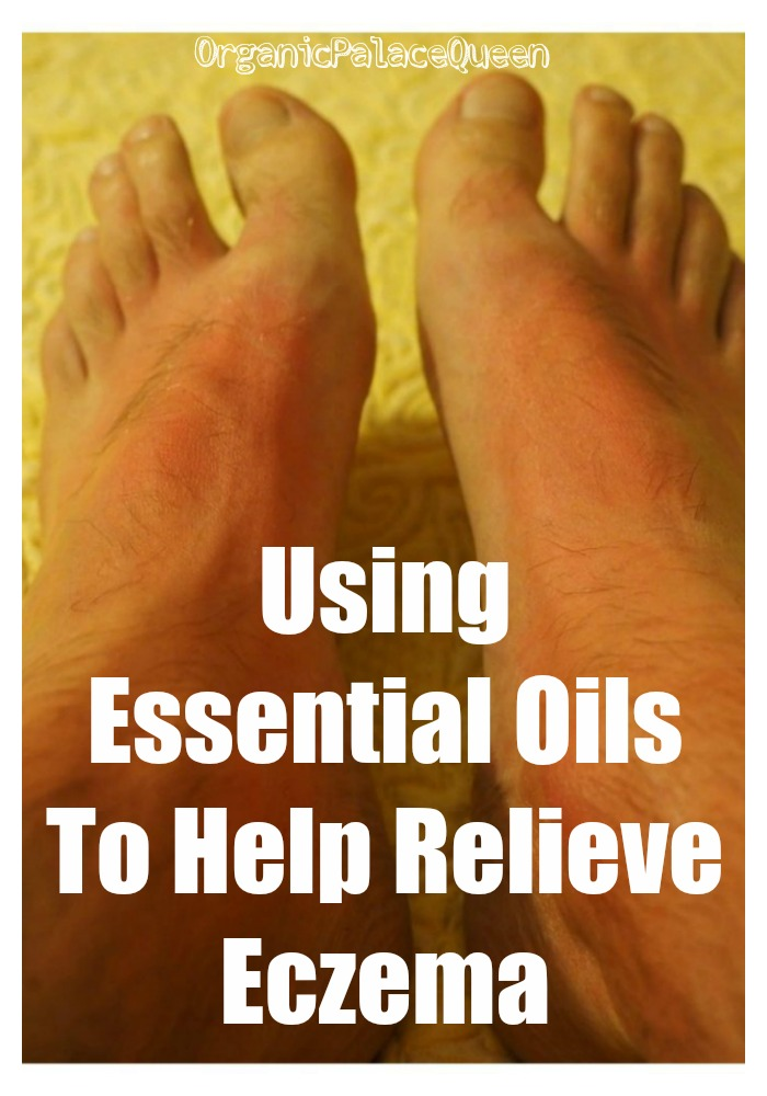 Can essential oils help eczema