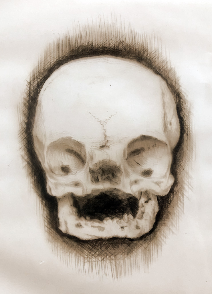 Skull drypoint print (from the collection of Surgeons' Hall, Edinburgh)