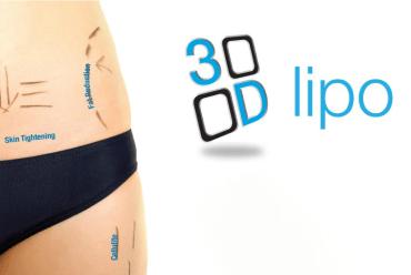 3D-Cryolipolyse Behandeling