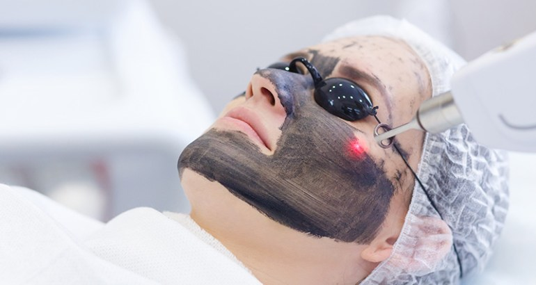 Carbon Laser Peeling Behandeling