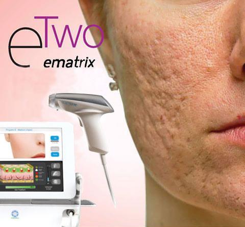 eMatrix behandeling