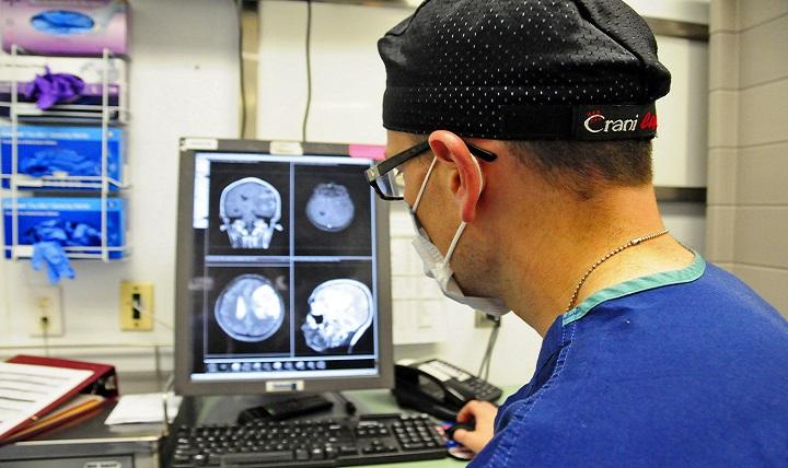 Doctor inspecting MRI brain scan