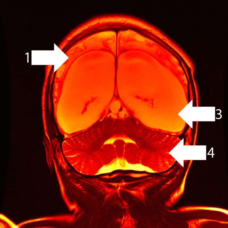 Coronal image of hypoxic-ischaemic brain injury