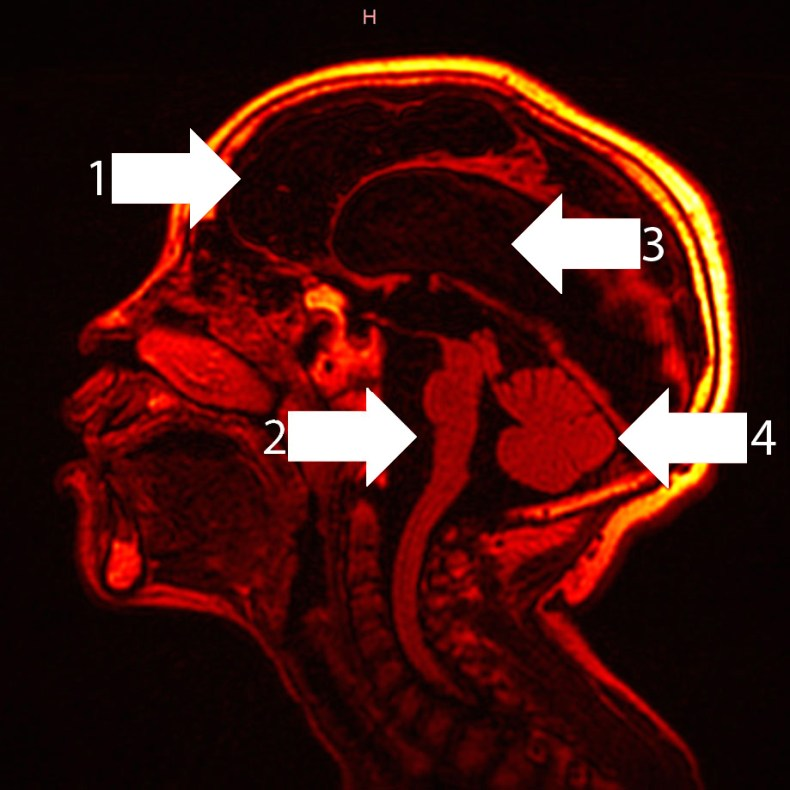 Sagittal image of hypoxic-ischaemic brain injury