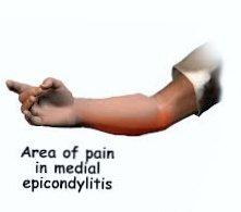 Treatment of Golfer's Elbow | Medial Epicondylitis