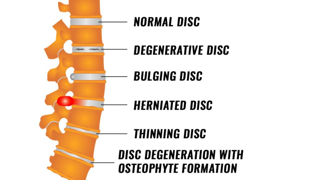 Diagram of spine and discs in varying stages of trauma.