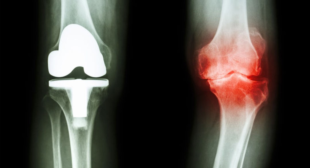 Image of an injured knee joint compared to a knee replacement.