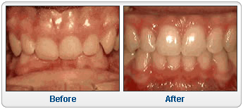 """Résultat de recherche d'images pour """"overbite dentaire"""""""