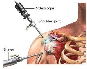 Shoulder Arthroscopy