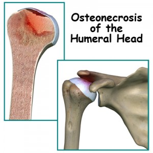 Osteonecrosis Humeral Head