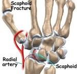 Carpal Scaphoid Fracture