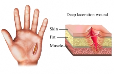 Laceration Wound