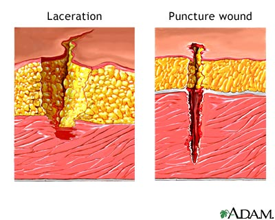 Lacerations Wound Treatment & Types