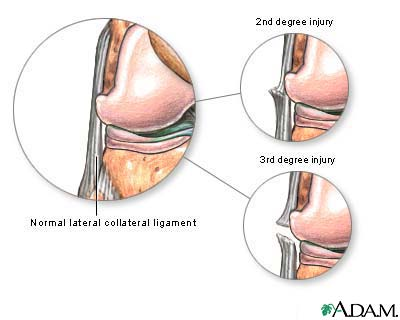 lcl) lateral collateral ligament injury treatment, symptoms, Human Body