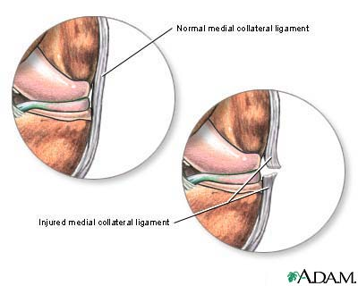 mcl) medial collateral ligament injury treatment & symptoms, Human Body