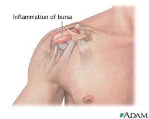 shoulder bursitis treatment & symptoms for shoulder pain, Human Body