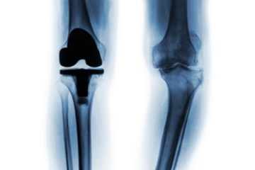 Total Knee Replacement Surgery (Total Knee Arthroplasty)
