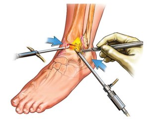 lateral collateral ligaments surgery