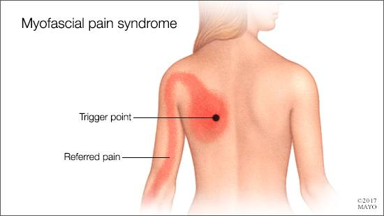 example trigger point and referred pain